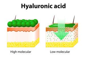 Återfuktning med hyaluronsyra.